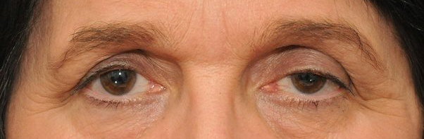 deep set hooded eyes