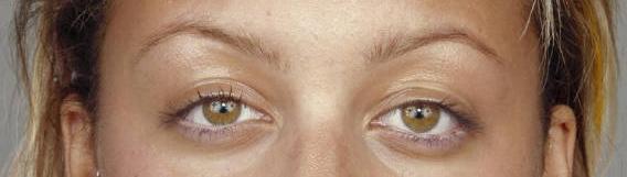 sad eye shape
