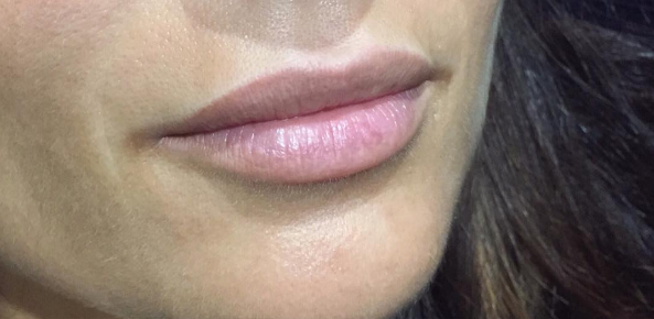 natural permanent lips chelmsford