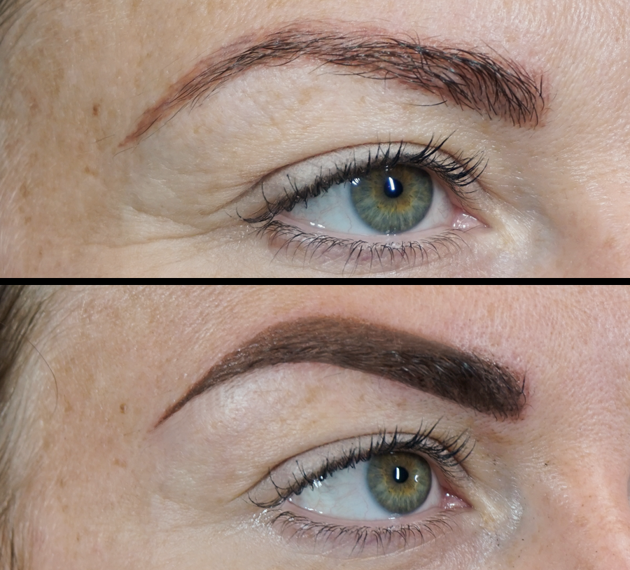 brows chelmsford