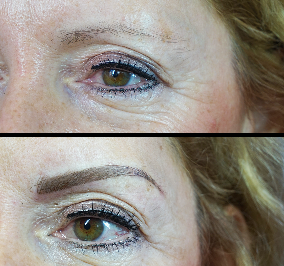 Microblading Chelmsford
